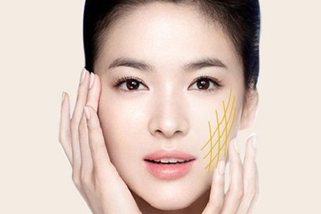 Cấy chỉ Collagen N-Finders Eye